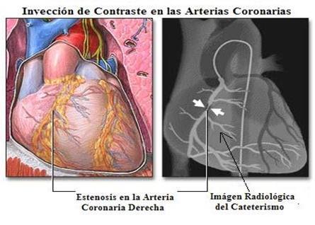 arterias.jpg